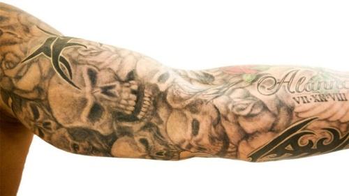 brazo randy orton